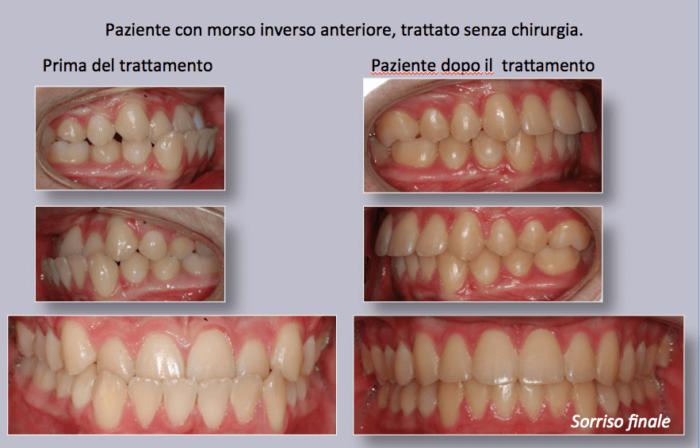 Il paziente presenta carenze di spazio, palato stretto e affollamento delle arcate, morso profondo (i denti superiori battono sulla gengiva, sulla arcata superiore)