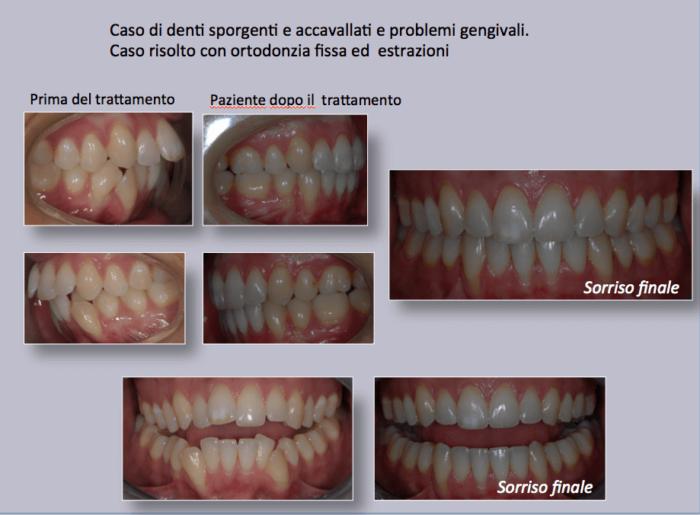 Caso di denti sporgenti e accavallati e problemi gengivali. Caso risolto con ortodonzia fissa ed estrazioni.