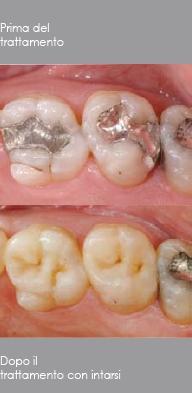 Odontoiatria Conservativa