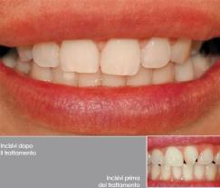Denti Dritti con l'Ortodonzia