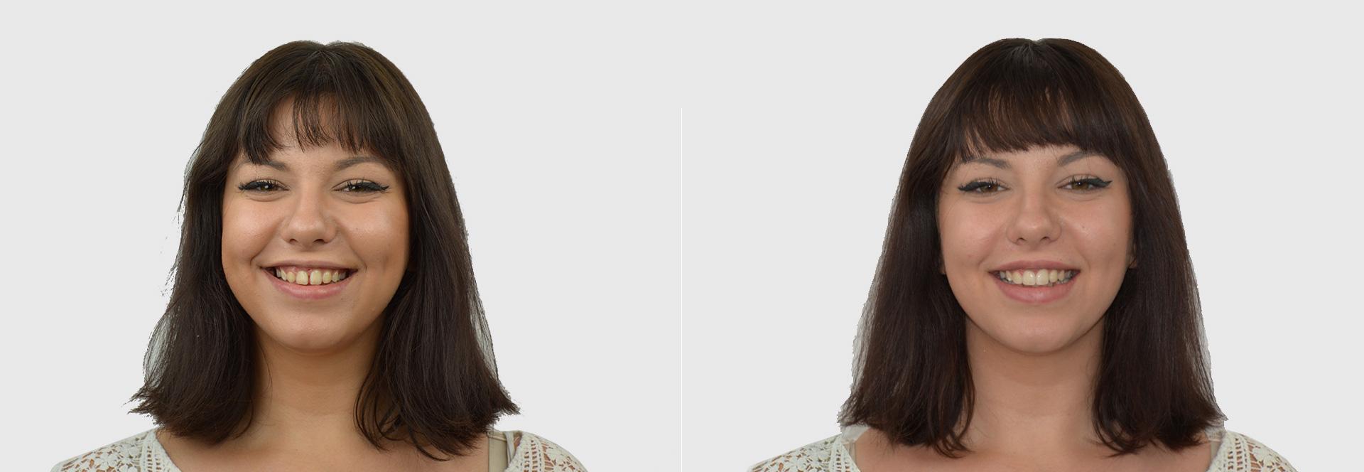 agenesia dentale diastema faccette
