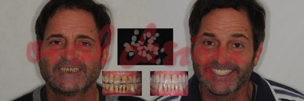 Applicazione faccette dentali - Lumineers
