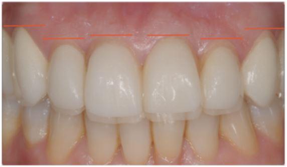 BOPT - biological oriented preparation technique - Ideal position of gingival cobtour