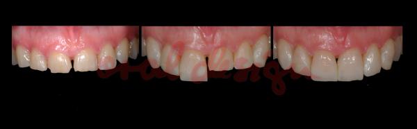 Faccette Addizionali Caso1 Denti