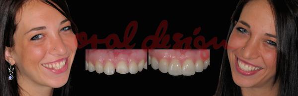 correzione anatomica con faccette addizionali in ceramica senza limatura del dente