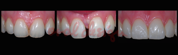 Faccette addizionali in ceramica senza limatura del dente